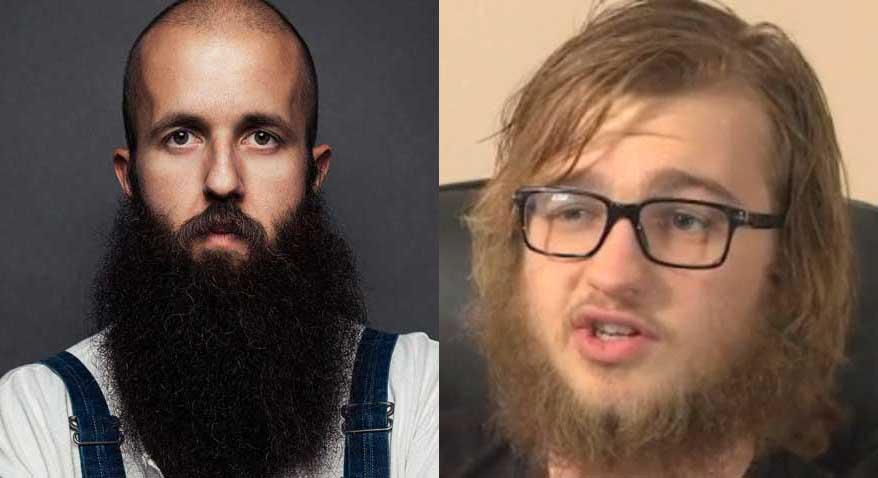 10 persone a cui la barba sta bene e 10 a cui sta di merda